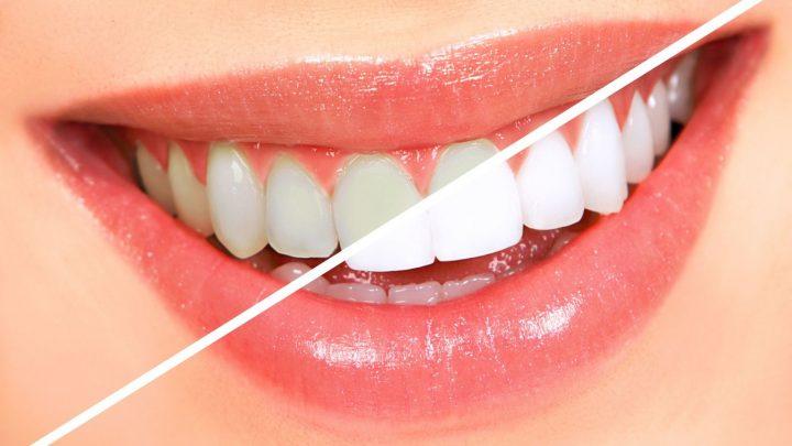 Bỏ túi ngay bí quyết giúp răng trắng sáng để có nụ cười tự tin hơn