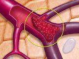 Huyết khối tĩnh mạch não: Bệnh nguy hiểm, cần phát hiện sớm