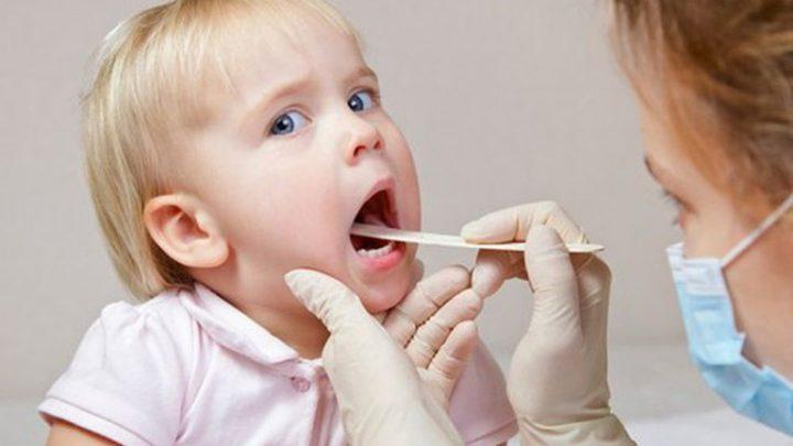 Viêm họng cấp và cách phòng ngừa cho trẻ