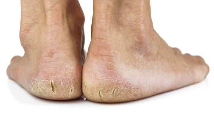 Bỏ túi những bí kíp trị nứt nẻ gót chân đơn giản và hiệu quả